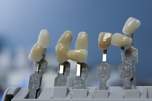 Select Dental Implants 13