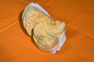 Find Dental Implants 36