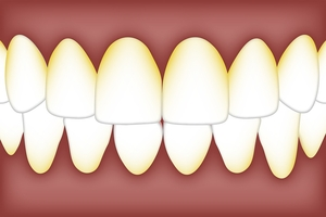 Learn more about Dental Implants 5